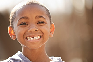 Child smiling with baby teeth.